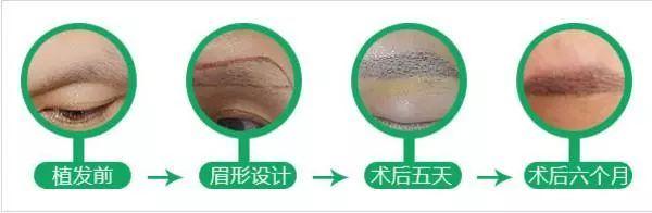 恒美植发:眉毛种植是怎么一回事,有用吗?