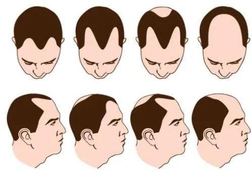恒美植发:秃顶的原因,秃顶种植的效果如何