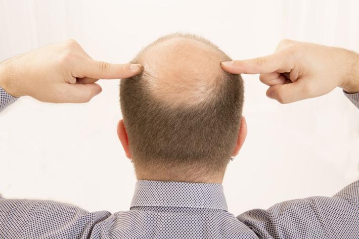 植发的好处与坏处都有哪些?植发贵吗?