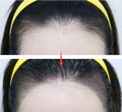 发际线调整的方式 植发之前需要先设计发际线
