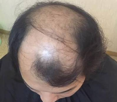 秃顶植发的好处,多的你想不到