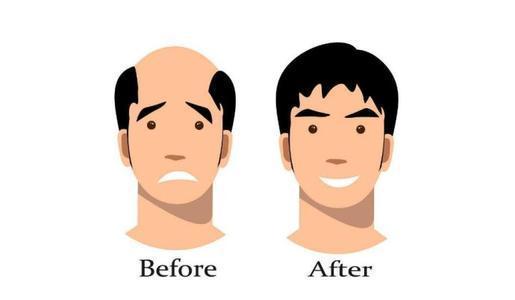 恒美植发:后脑勺稀疏可以植发吗?安全系数有多高?