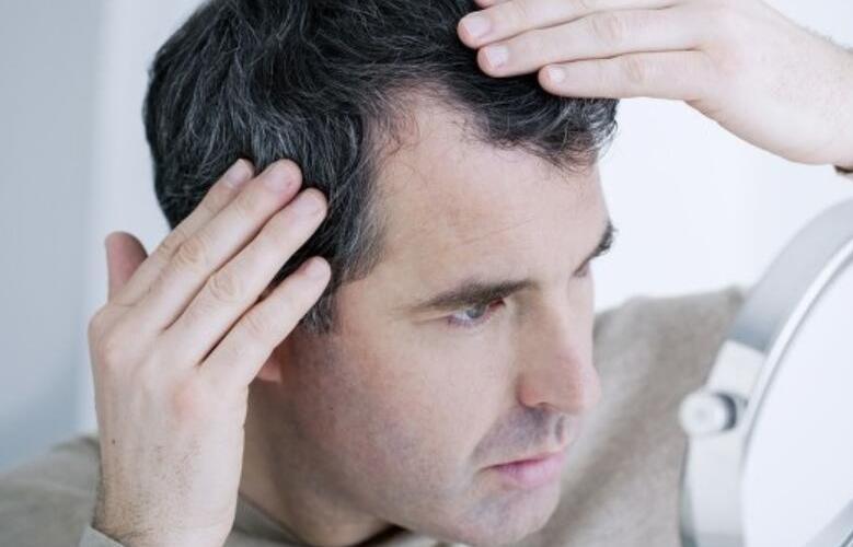 恒美植发:头发白了可以植发吗?植发对发色有没有要求?