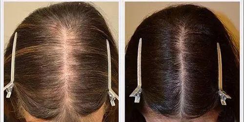 恒美植发:头皮有疤痕可以种植吗?成功率有多大?