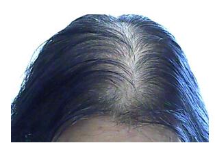 恒美植发:成都那里可以治疗脱发 治脱发一般都用什么方法