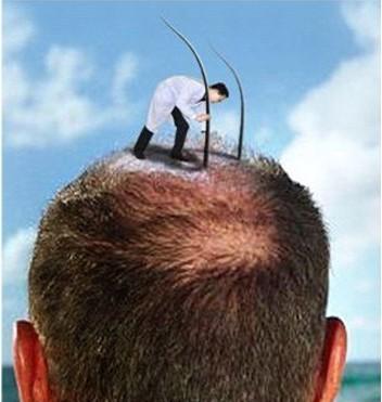 恒美植发:前额稀疏可以植发吗?有危险性吗?